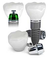 Dental Implants in Mesa