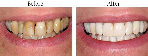 Mesa Before and After Invisalign